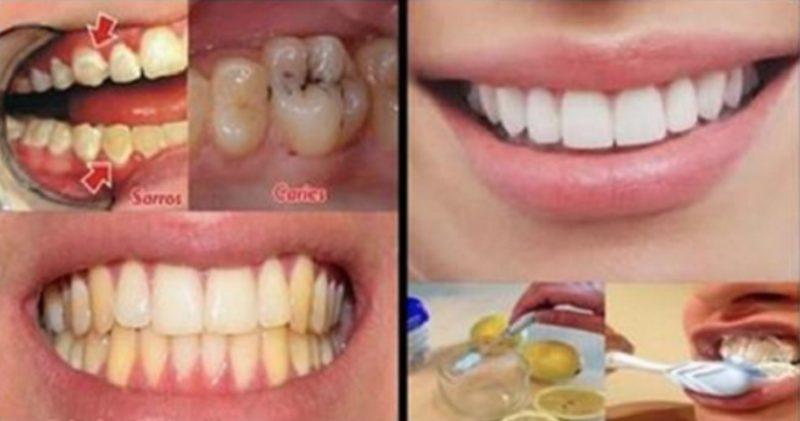 """သြားပိုးစားတာ၊ သြားေက်ာက္တည္တာ၊ သြားဝါတာေတြကို """"Goodbye"""" လို႔ ႏႈတ္ဆက္လိုက္ၾကရေအာင္"""