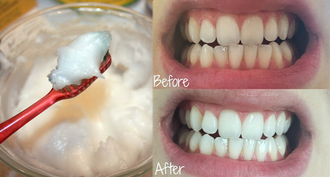 New-Study-Reveals-Coconut-Oil-Is-Far-Better-Than-Your-Toothpaste