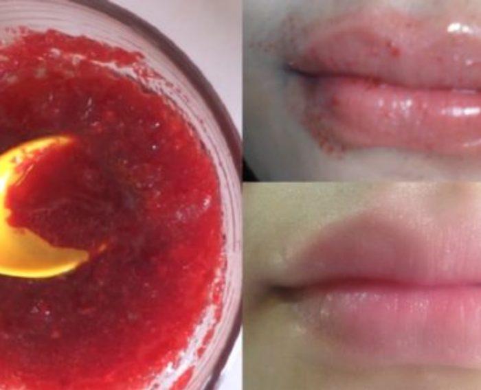 Lips Remedy