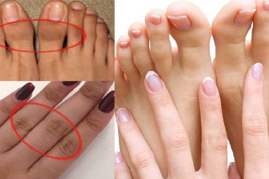 Dark Knuckles Toes