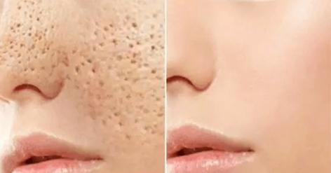 Bad Skin
