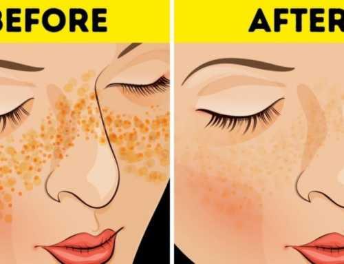 မျက်နှာပေါ်ကအမည်းစက်တွေကို သက်သာစေပြီး အသားအရေ ကြည်လင်စေမယ့် နည်းလမ်း
