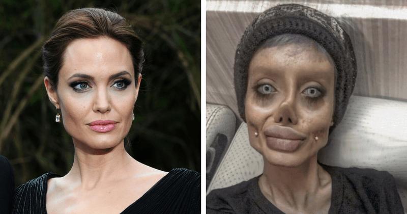 Angelina Jolie နဲ႔ တူခ်င္လို႔ အႀကိမ္ ၅၀ ခြဲစိတ္ကုသခဲ့တဲ့ ဆယ္ေက်ာ္သက္မိန္းကေလး
