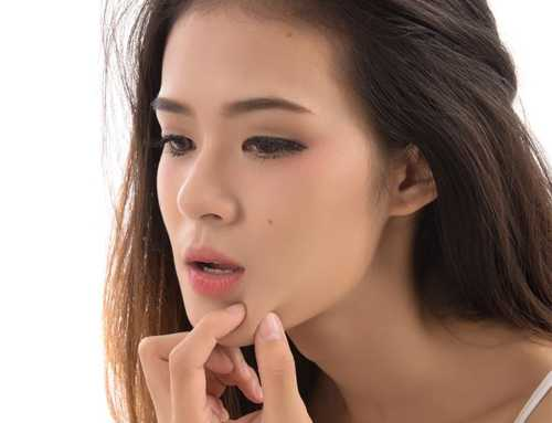 မေးစေ့၊ နှာခေါင်းနားမှာဖြစ်တတ်တဲ့ ဆားဝက်ခြံကို သက်သာစေဖို့ အိမ်မှာ အလွယ်တကူ ပြုလုပ်လို့ရတဲ့ နည်းလမ်းလေးတွေ