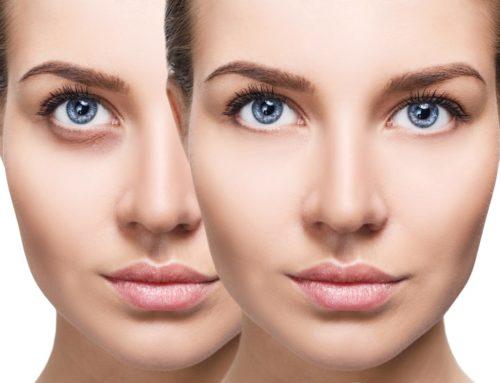 မျက်လုံးအောက်က မျက်အိတ်တွေပေါ်လာရတဲ့အကြောင်းအရင်းနဲ့ ကုသနည်းများ