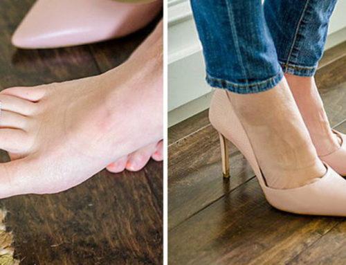 ရှူးဖိနပ်စီးတဲ့အခါမှာနာကျင်မှုကိုသက်သာစေမယ့်နည်းလမ်းကောင်း
