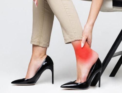 ဒေါက်ဖိနပ်စီးတဲ့အခါမှာခြေထောက်မနာစေမယ့်နည်းလမ်းကောင်း