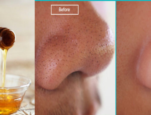 နှာခေါင်းပေါ်က အမည်းစက်တွေကို ပျားရည် သုံးပြီး ဖယ်ရှားနည်း