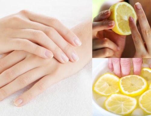ဝါညစ်နေတဲ့ လက်သည်းလေးတွေကို ဖြူဖွေးသန့်စင်သွားစေမယ့် သဘာဝနည်းလမ်း
