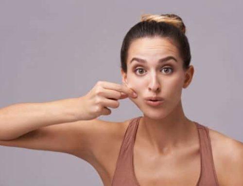 မျက်နှာပေါ်က ချဖို့ခက်နေတဲ့အဆီတွေကို ဖယ်ရှားနိုင်မယ့်နည်းလမ်း