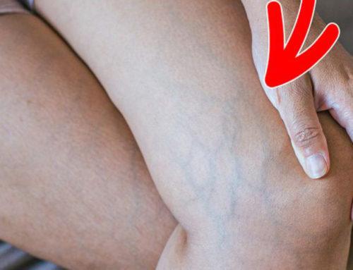 သွေးပြန်ကြောတွေကိုထိခိုက်ပျက်စီးအောင်သင်ကိုယ်တိုင်နေ့စဉ်ပြုလုပ်မိနေတဲ့အလေ့အကျင့်များ