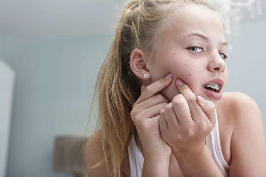 woman squeezing pimples on her face