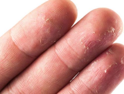 လက်မှာအရေခွံလန်တာကို သက်သာပျောက်ကင်းစေမယ့် သဘာဝနည်းလမ်းများ