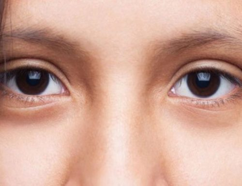 မျက်လုံးနားတစ်ဝိုက်မှာအသားခြောက်နေတာကိုသက်သာစေမယ့်သဘာဝနည်းလမ်းများ