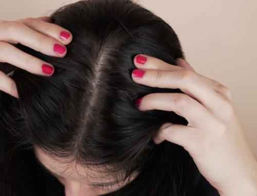 သင်က ဦးရေပြားအဆီပြန်တတ်တဲ့သူတစ်ယောက်ဆိုရင် ဘယ်နည်းလမ်းတွေနဲ့ပြန်ဂရုစိုက်မလဲ