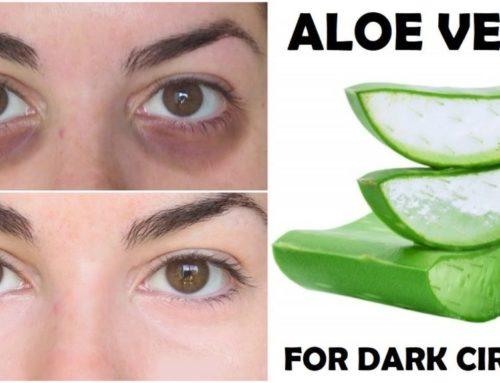 ရှားစောင်းလတ်ပတ်နဲ့ မျက်ကွင်းညိုတာကို သက်သာစေမယ့် အသားအရေ ထိန်းသိမ်းနည်း