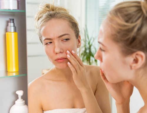 Dry Skin ခြောက်သွေ့တဲ့အသားအရေပိုင်ရှင်တွေ သတိထားရှောင်ကြဉ်ပေးရမယ့်အရာ (၈) မျိုး