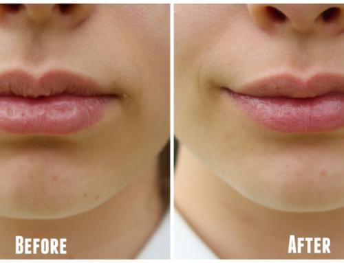 နှုတ်ခမ်းနီဆိုးတဲ့အချိန်တိုင်း နှုတ်ခမ်းသားစိုပြေနူးညံ့နေစေဖို့ DIY Lip Scrub ပြုလုပ်နည်း