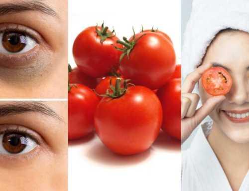 ခရမ်းချဥ်သီးသုံးပြီး မျက်ကွင်းညိုတဲ့ပြဿနာကို အကောင်းဆုံးဖယ်ရှားကြမယ်
